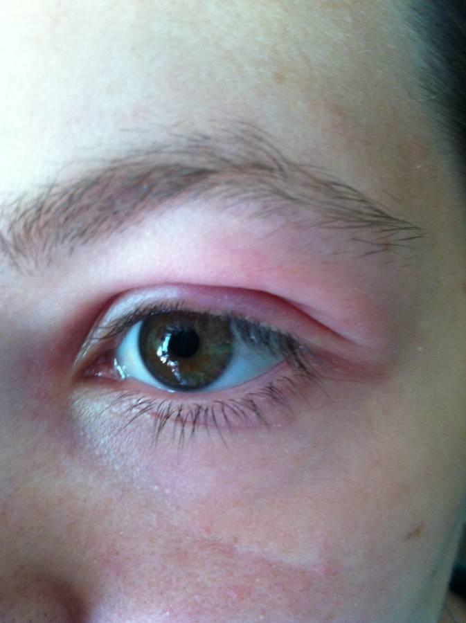 Продуло глаз болит веко
