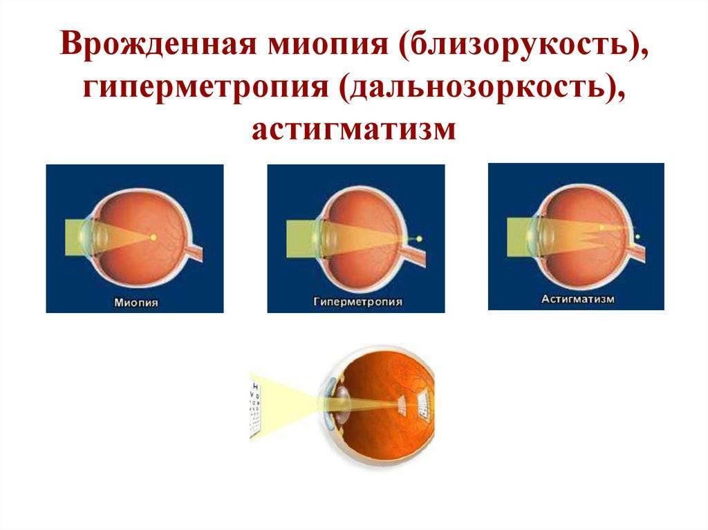 Сложный гиперметропический астигматизм обоих глаз: что это такое