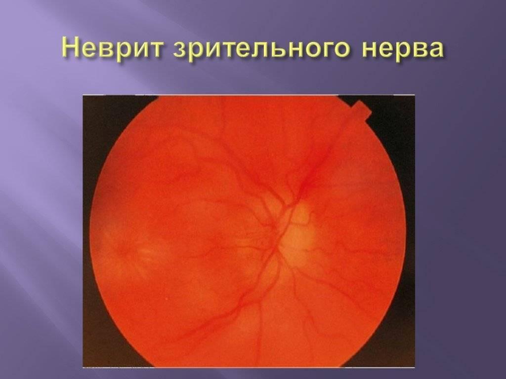 Воспаление глазного нерва — википедия с видео // wiki 2