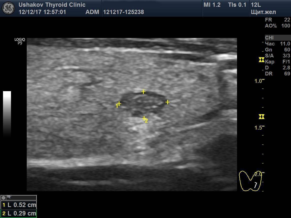 Опасен ли гипоэхогенный узел щитовидной железы?