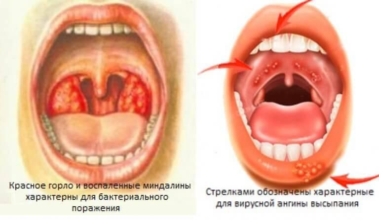 Что такое вирусная ангина и как ее лечить у детей?