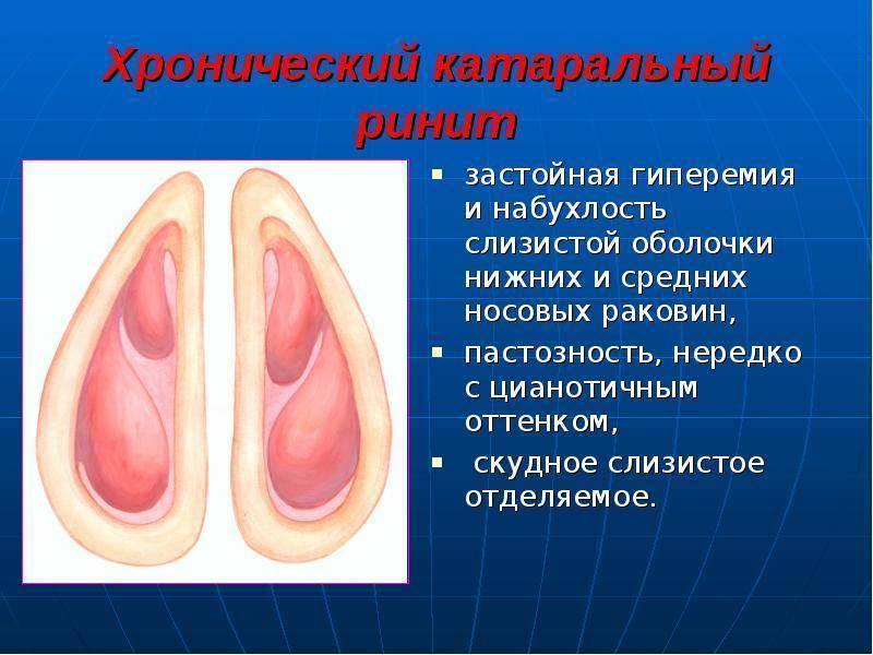лечение острого ринита у взрослых в домашних условиях