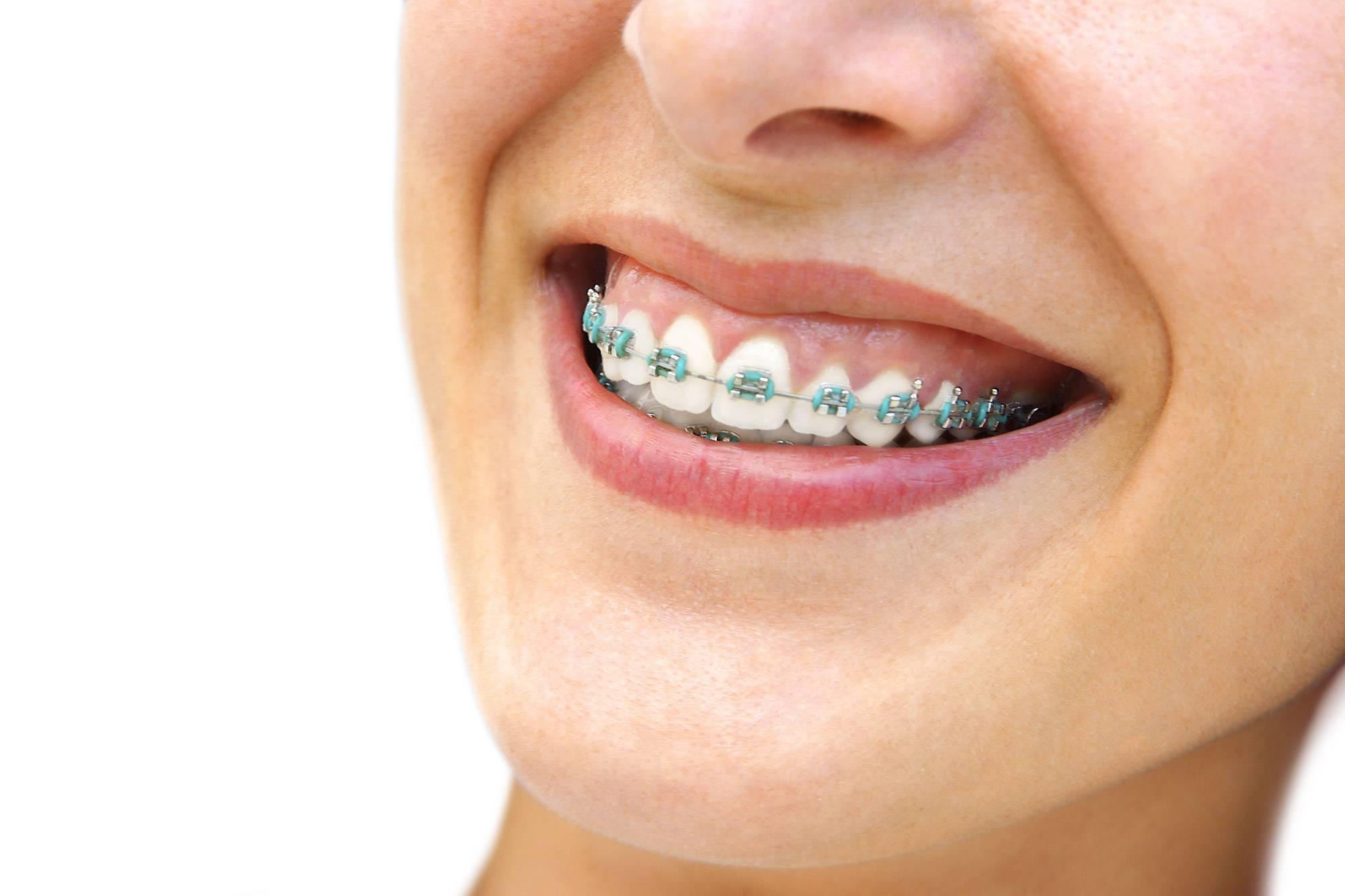 Cкобы на зубы – показания к установке и стоимость конструкции