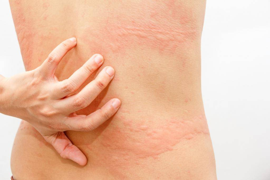 Лечим аллергический дерматит в домашних условиях