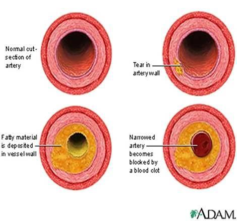 атеросклероз кто лечит