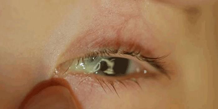 гной в глазах после бани