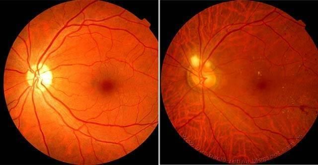 Отек сетчатки глаза: причины, симптомы и лечение