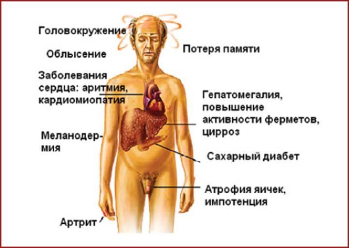 Цирроз печени у алкоголика: симптомы и признаки