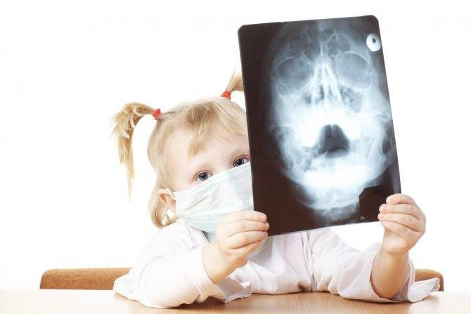 Симптомы и лечение гайморита у детей раннего и дошкольного возраста (2-7 лет)