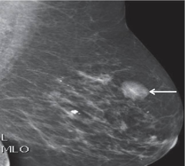фиброаденома молочной железы причины возникновения