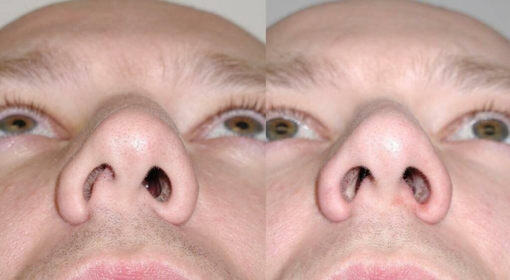 Болит возле носа