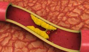 Можно ли пить кофе при сдаче крови на холестерин