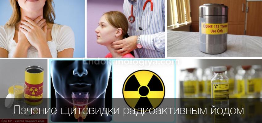 Что происходит после радиойодтерапии: возможные последствия радиационного воздействия i-131 на организм человека
