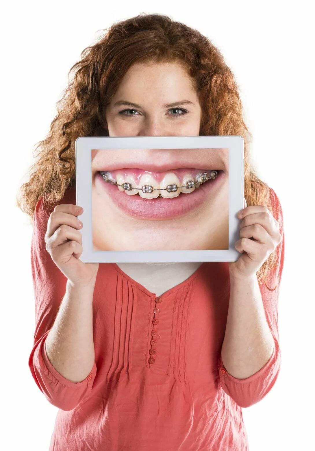 Детали съемных ортодонтических аппаратов