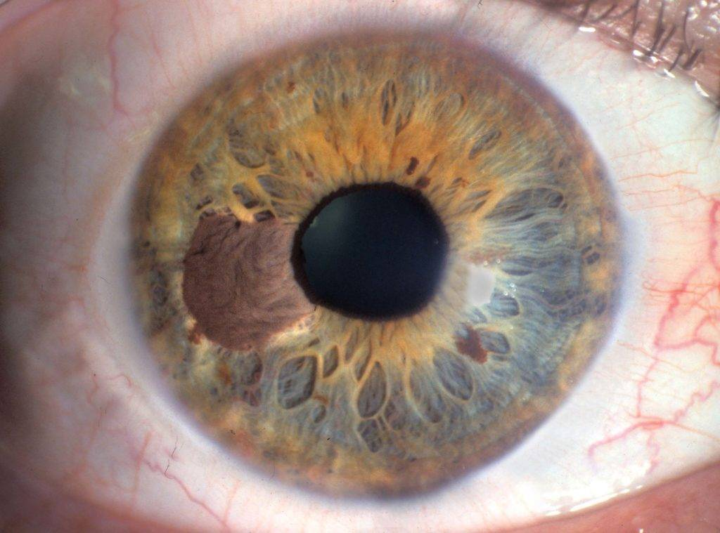 черные точки в глазах лечение