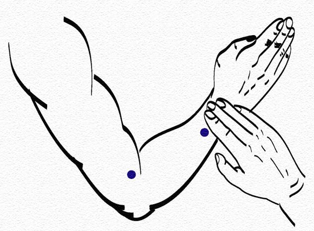 межреберная невралгия массаж