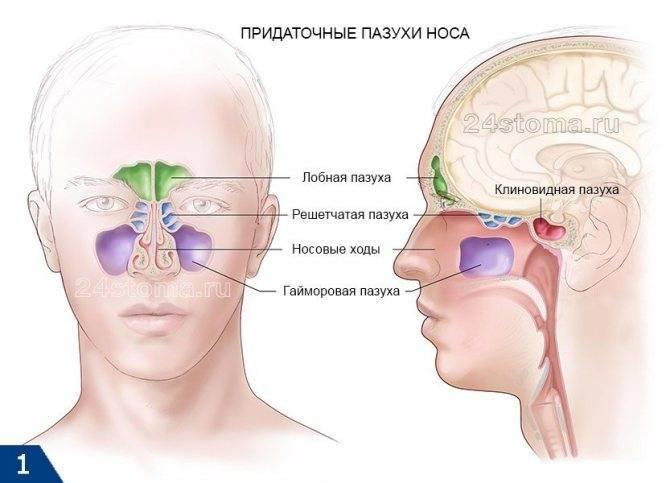 Острый и хронический сфеноидит: что это такое, каковы его причины, симптомы и лечение