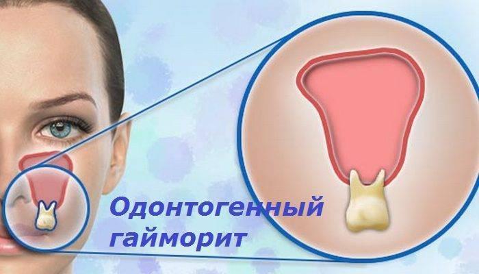 Признаки и лечение одонтогенного гайморита