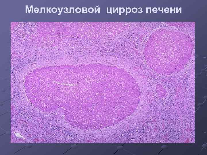 Мелкоузловой цирроз печени что это