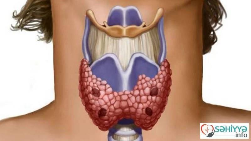 Патологии щитовидной железы: коллоидный узел — насколько опасен?