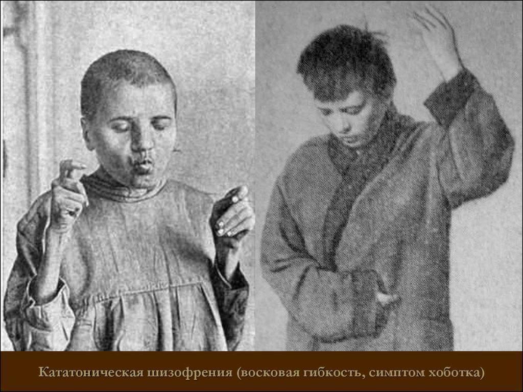 Кататоническая шизофрения — википедия. что такое кататоническая шизофрения