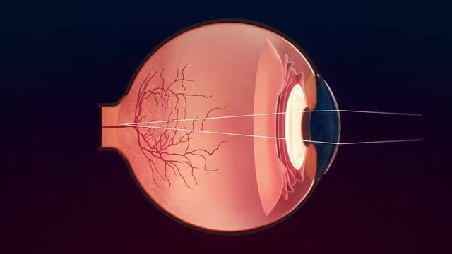 Что такое ангиосклероз сетчатки глаза