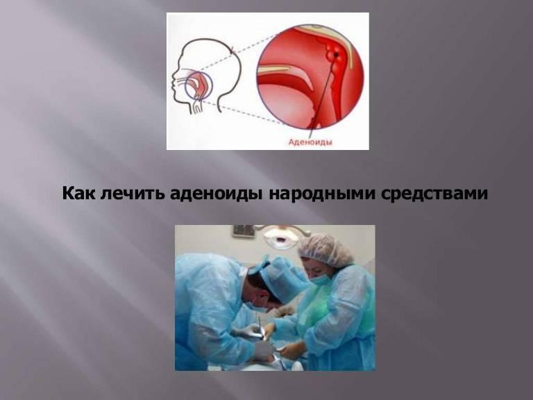 народные методы лечения аденоидов