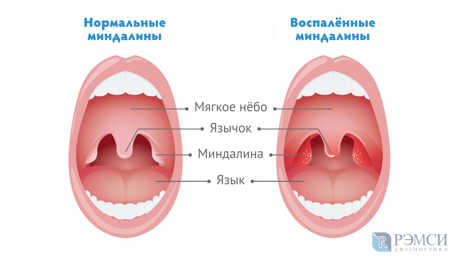 Как лечить у взрослых и детей грибковую (кандидозную) ангину