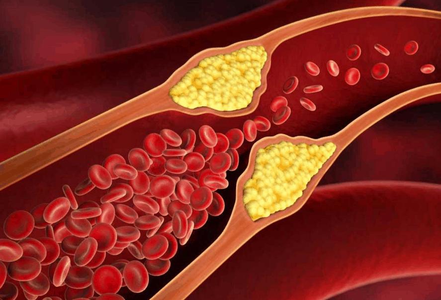 Особенности развития и лечения диабетической формы атеросклероза