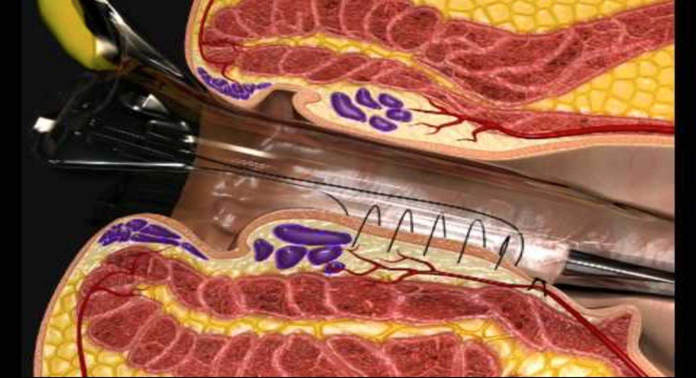 дезартеризация геморроидальных узлов с мукопексией