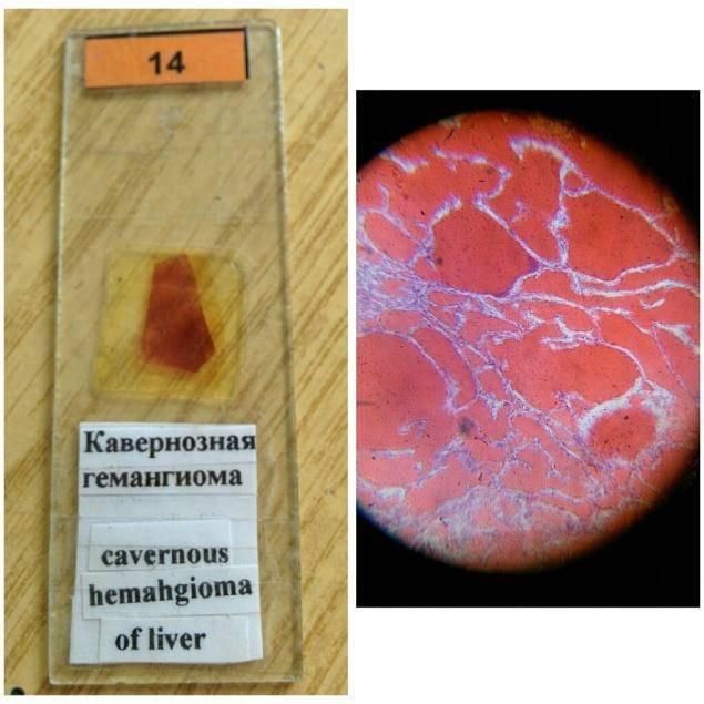 Что такое гемангиома печени и чем она опасна