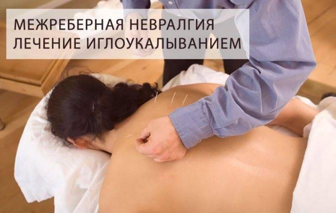 Лечение межреберной невралгии слева медикаментами