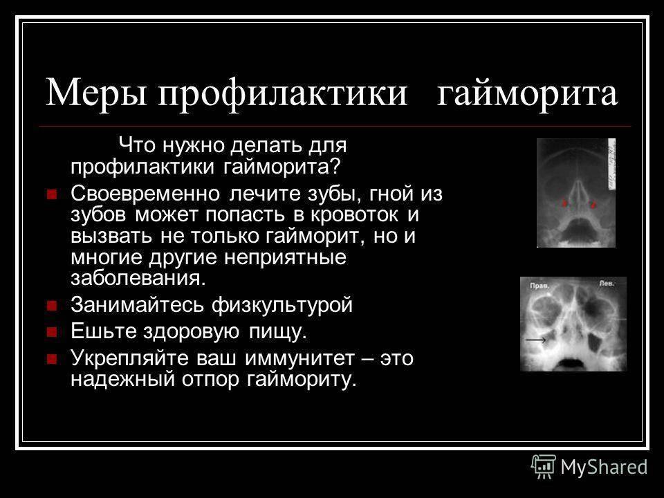 в чем отличие синусита от гайморита