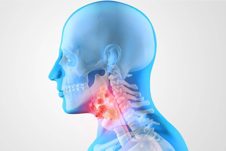 Рак гортани: как развивается, симптомы и признаки, диагноз, лечение