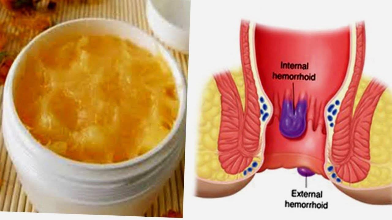 Народная медицина и диета при лечении геморроя