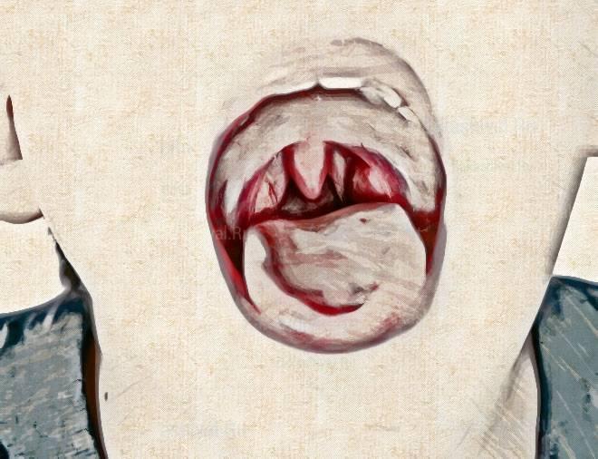 Почему щекочет в области горла и вызывает приступы кашля