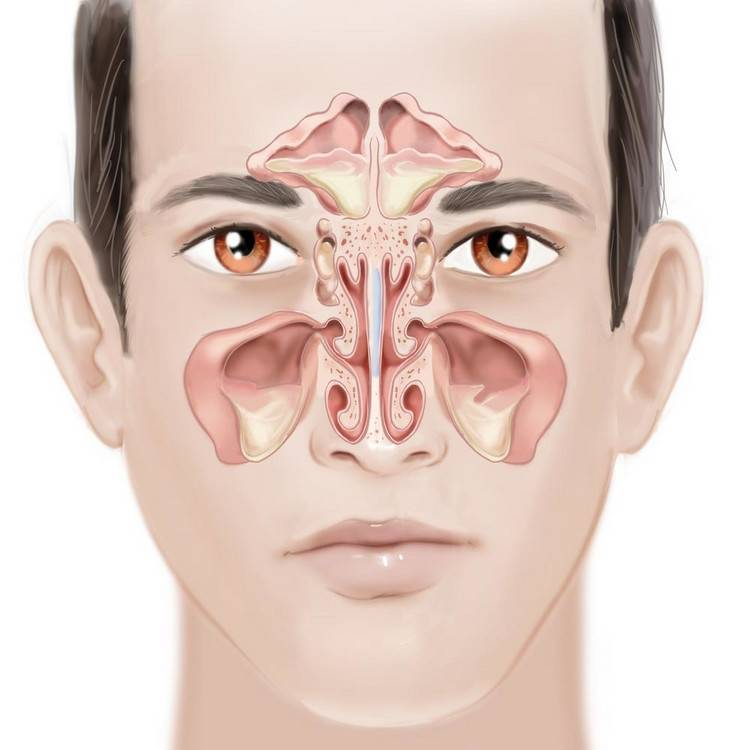 Лечение полипозного этмоидита