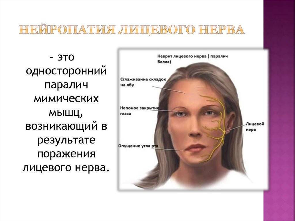Неврит лицевого нерва