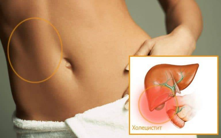 Чем опасен холецистит при беременности и как его лечить?