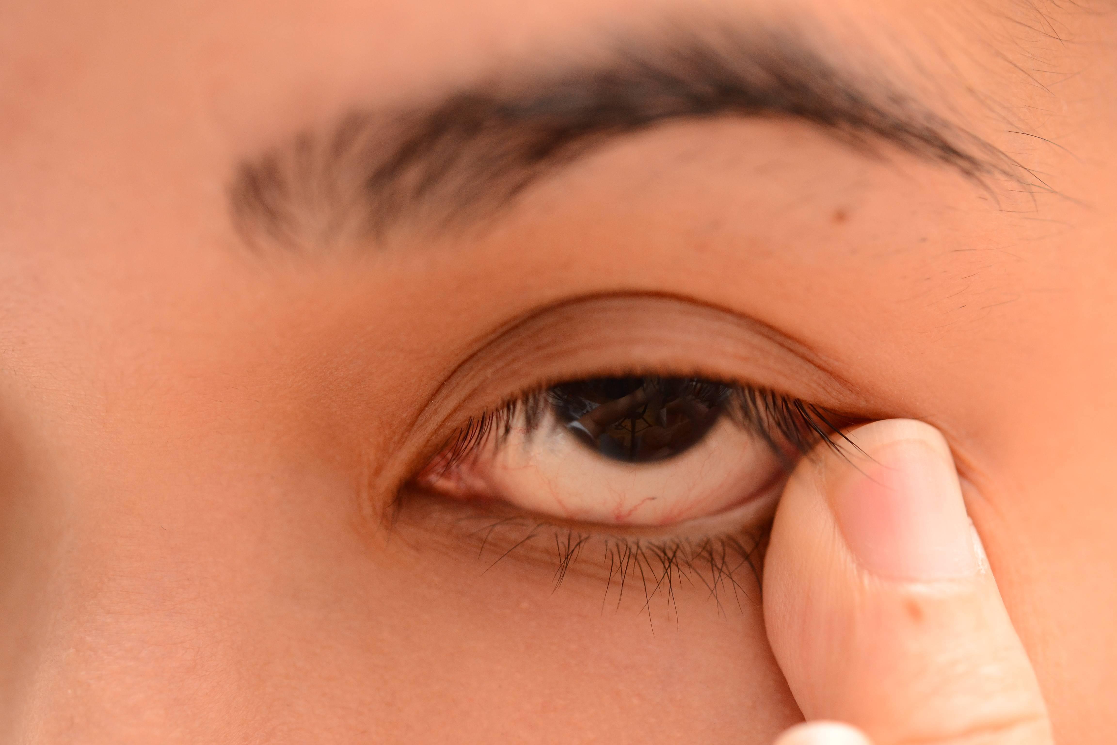 заговор против ячменя на глазу