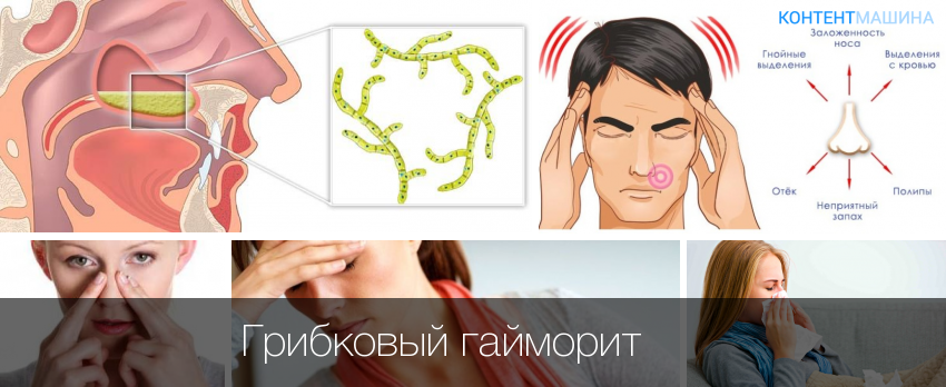 лечение грибкового гайморита