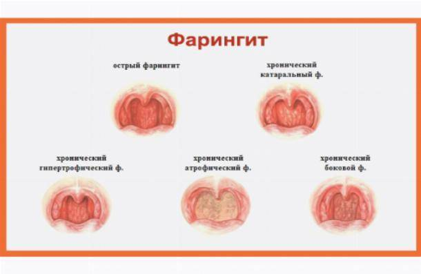 Фото горла, симптомы и лечение острого фарингита у детей