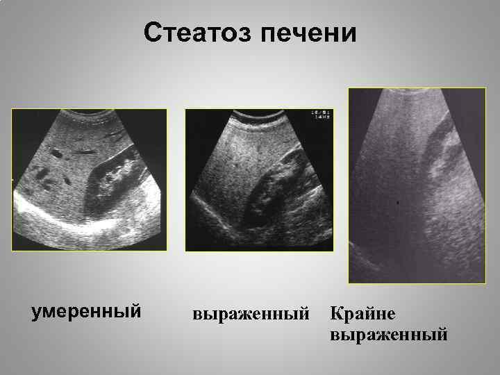стеатогепатоз лечение народными средствами