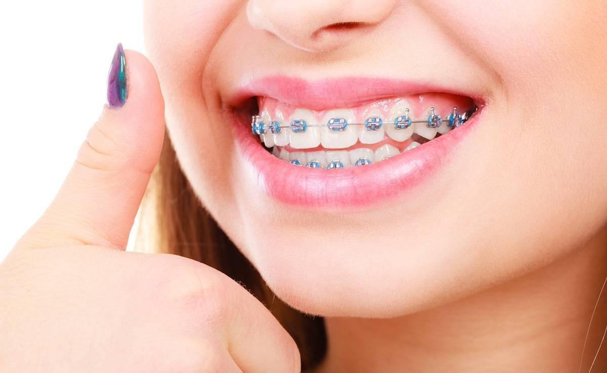 Ортодонтия — википедия. что такое ортодонтия