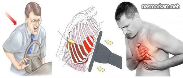 боль в грудной клетке слева при кашле