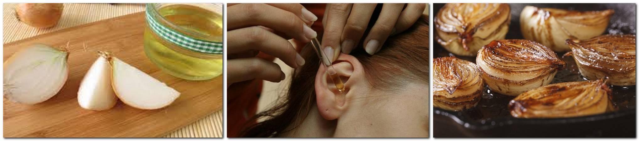 Народные рецепты лечения ушей - народное  личения
