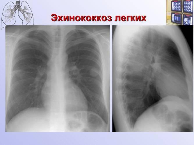 Диагностика и лечение эхинококкоза: что это такое