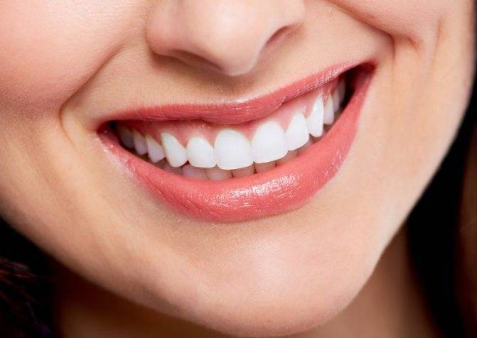 Исправляем кривые зубы без брекетов
