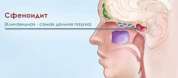 киста носа симптомы