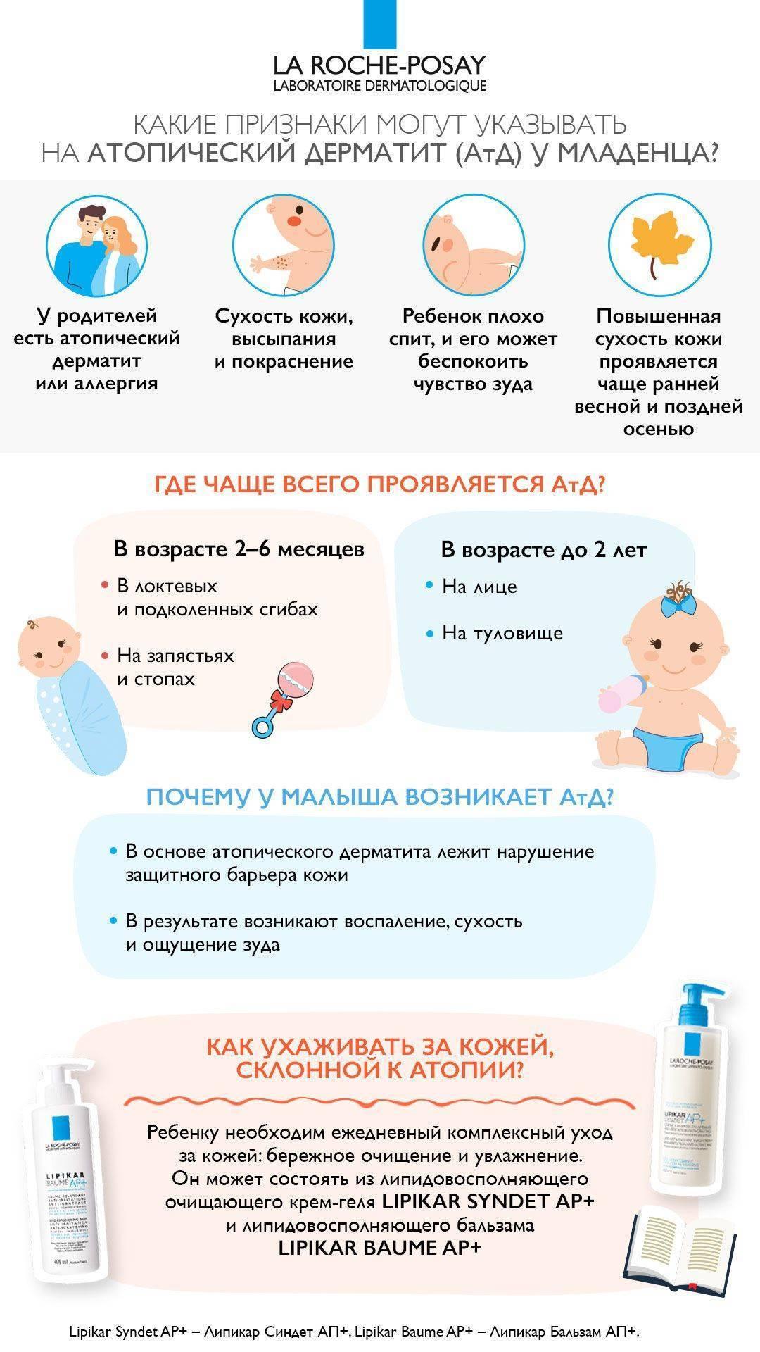 Атопический дерматит у детей: лечение народными средствами или методами традиционной медицины